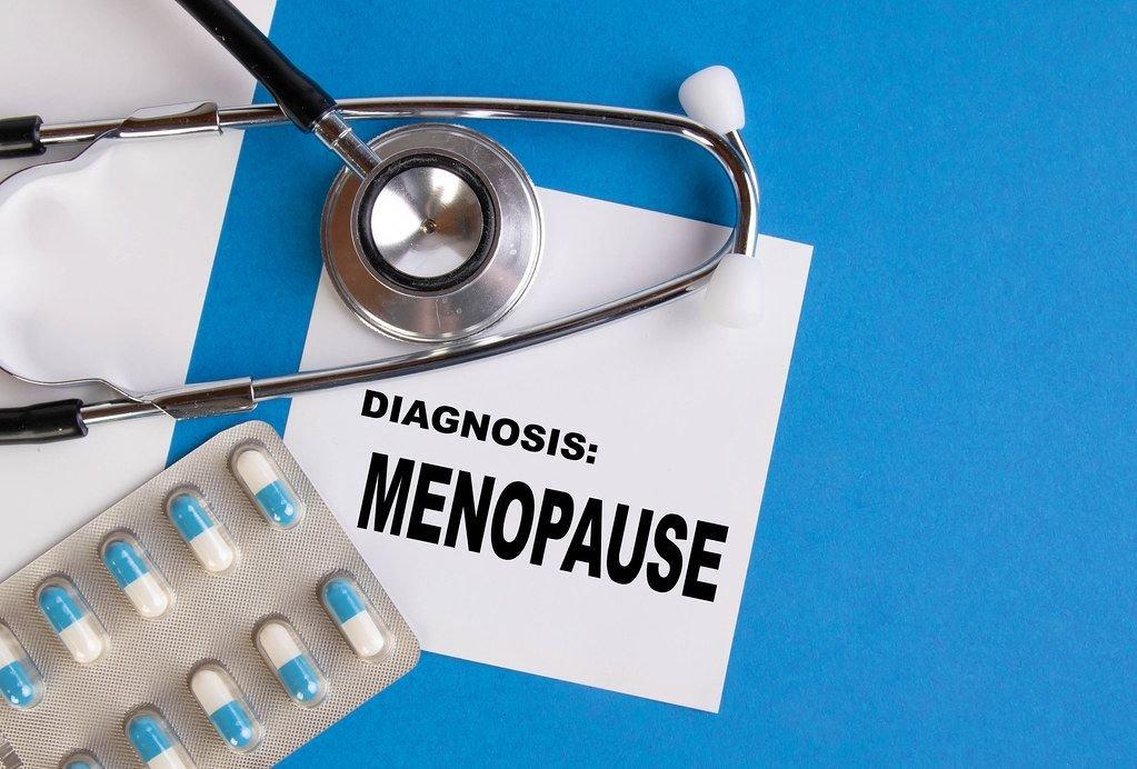 """Diagnose: Wechseljahre / Menopause"""", geschrieben auf blauem Ärzteordner, neben Medikamenten und Stethoskop"""