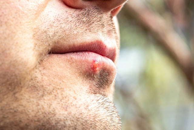 Herpes on the lower lip of a man