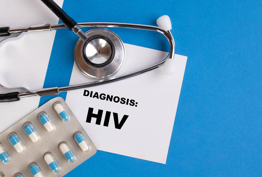 Diagnosis HIV written on medical blue folder