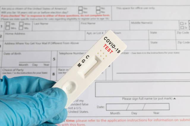 Doctor holding Coronavirus test cassette