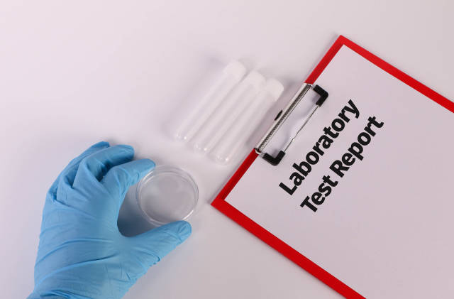 Hand in blue medical glove holding empty test tube and clipboard with Laboratory Test Report text