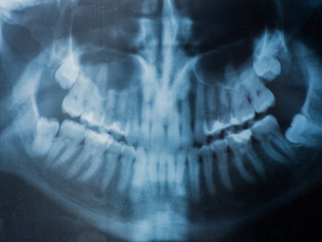 X-ray of human jaw with teeth. Dental visit