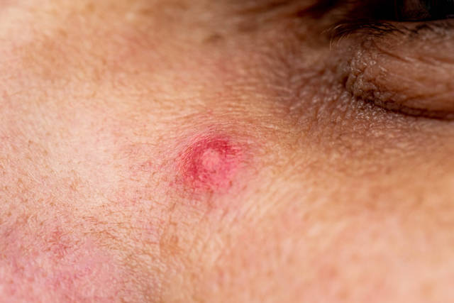 Close up photo of pimple on mens face