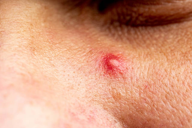 Red purulent pimple on the skin - close-up