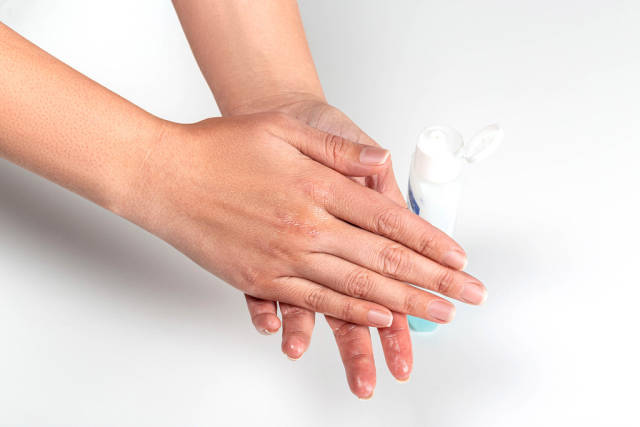 Woman hands treatment with antiseptic