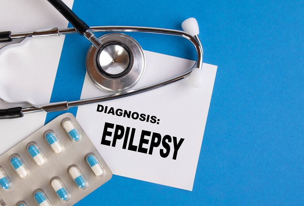 Diagnosis Epilepsy written on medical blue folder