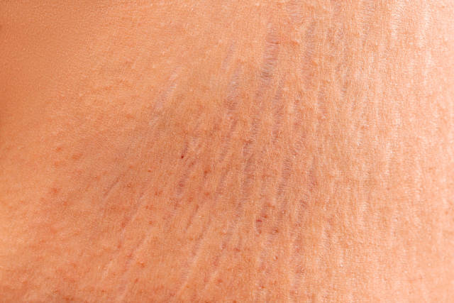 Stretch marks on the skin, wrinkles,obeseness