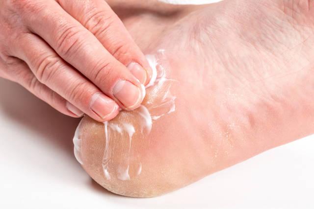 A man puts cream on his heel. Foot crack treatment