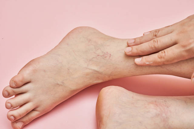 Woman shows leg with varicose veins