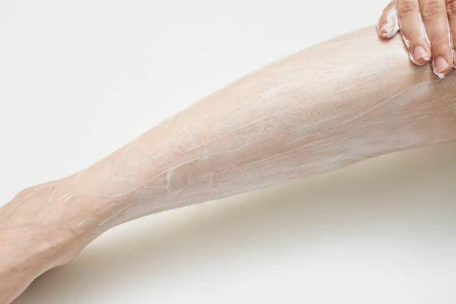 A woman applying hair removing cream on her leg