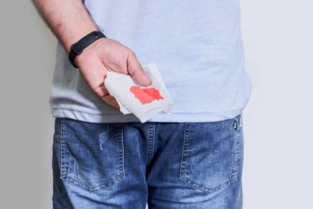 Young male hand holds a piece of toilet paper with blood from hemorrhoids