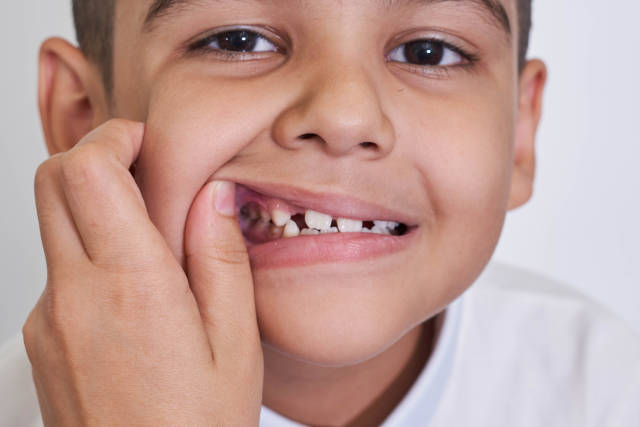 Close-up view of a little boy grimacing face while mother hands checking his teeth